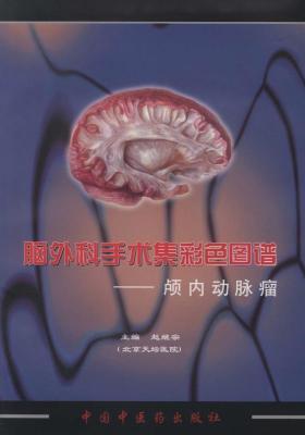 脑外科手术集彩色图谱——颅内动脉瘤