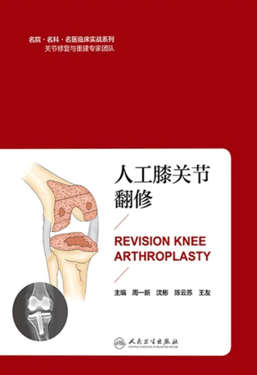 人工膝关节翻修