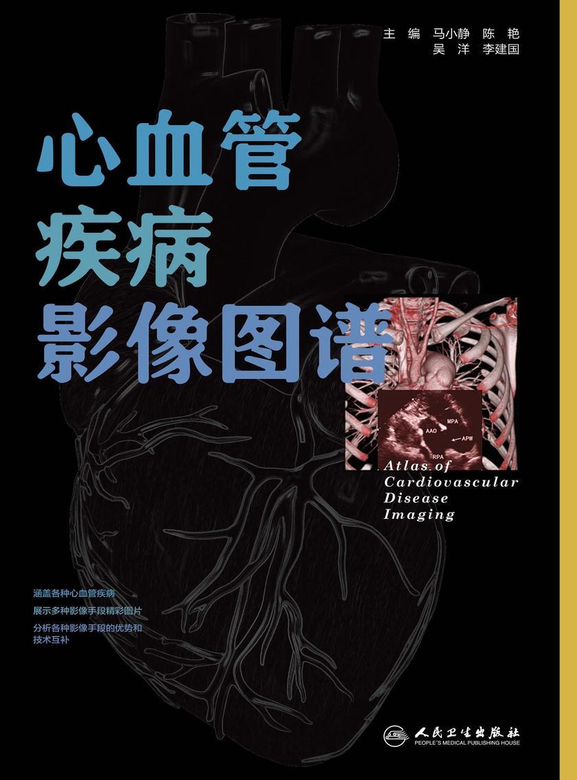 心血管疾病影像图谱