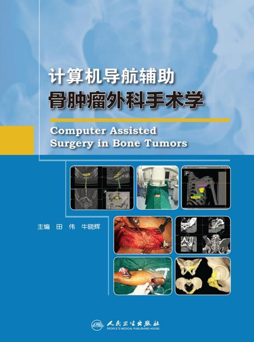 计算机导航辅助骨肿瘤外科手术学