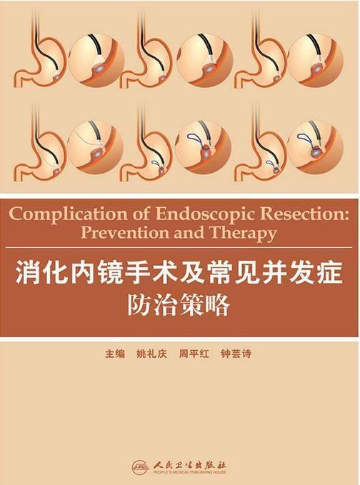 消化内镜手术及常见并发症防治策略