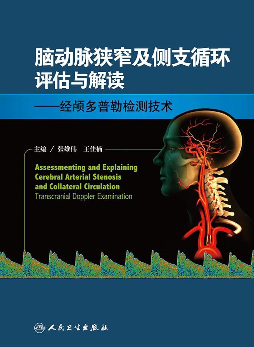 脑动脉狭窄及侧支循环评估与解读——经颅多普勒检测技术