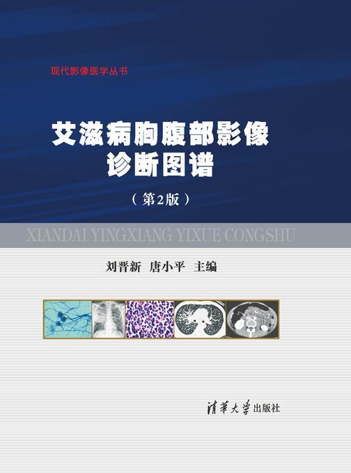 艾滋病胸腹部影像诊断图谱(第2版)