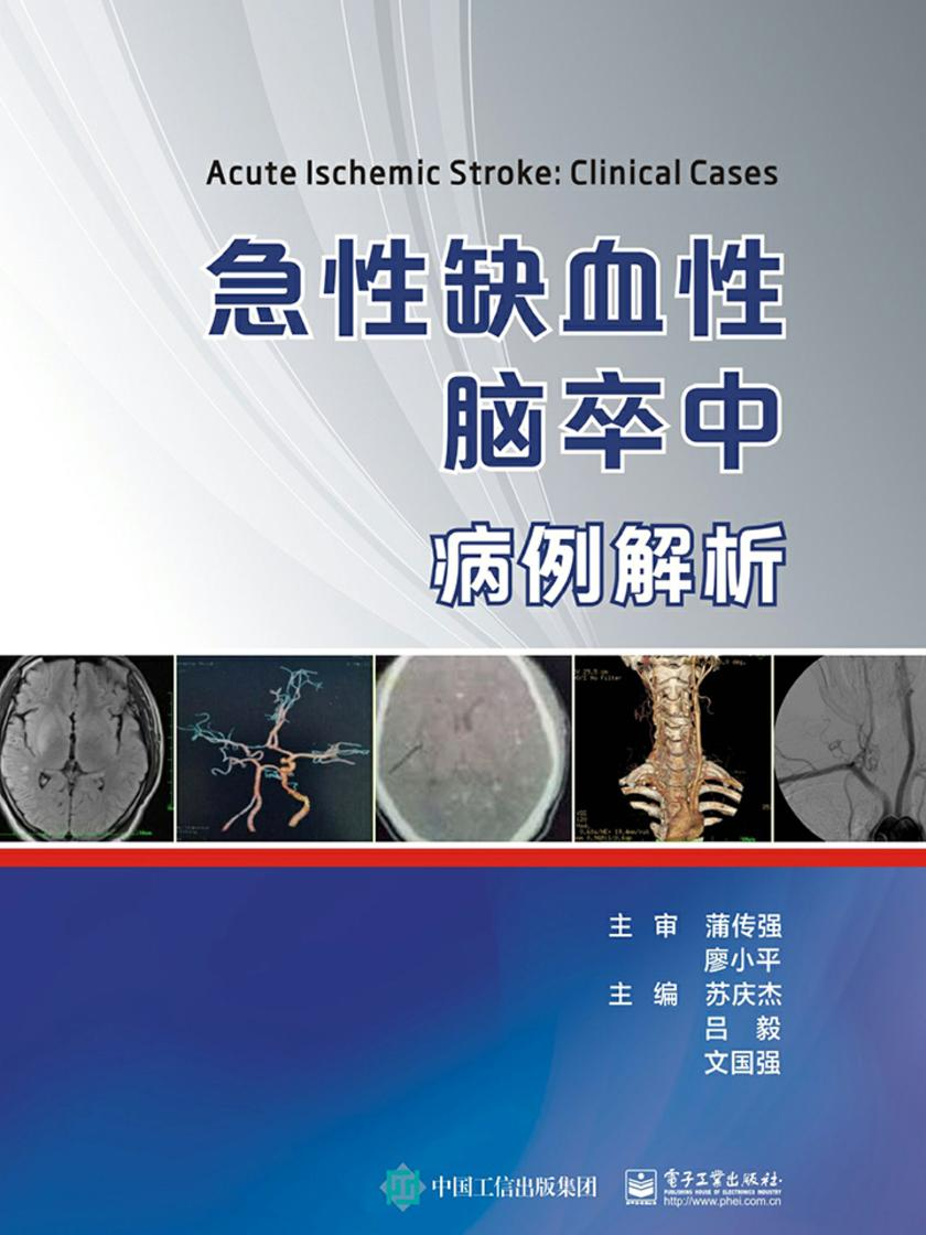 急性缺血性脑卒中病例解析