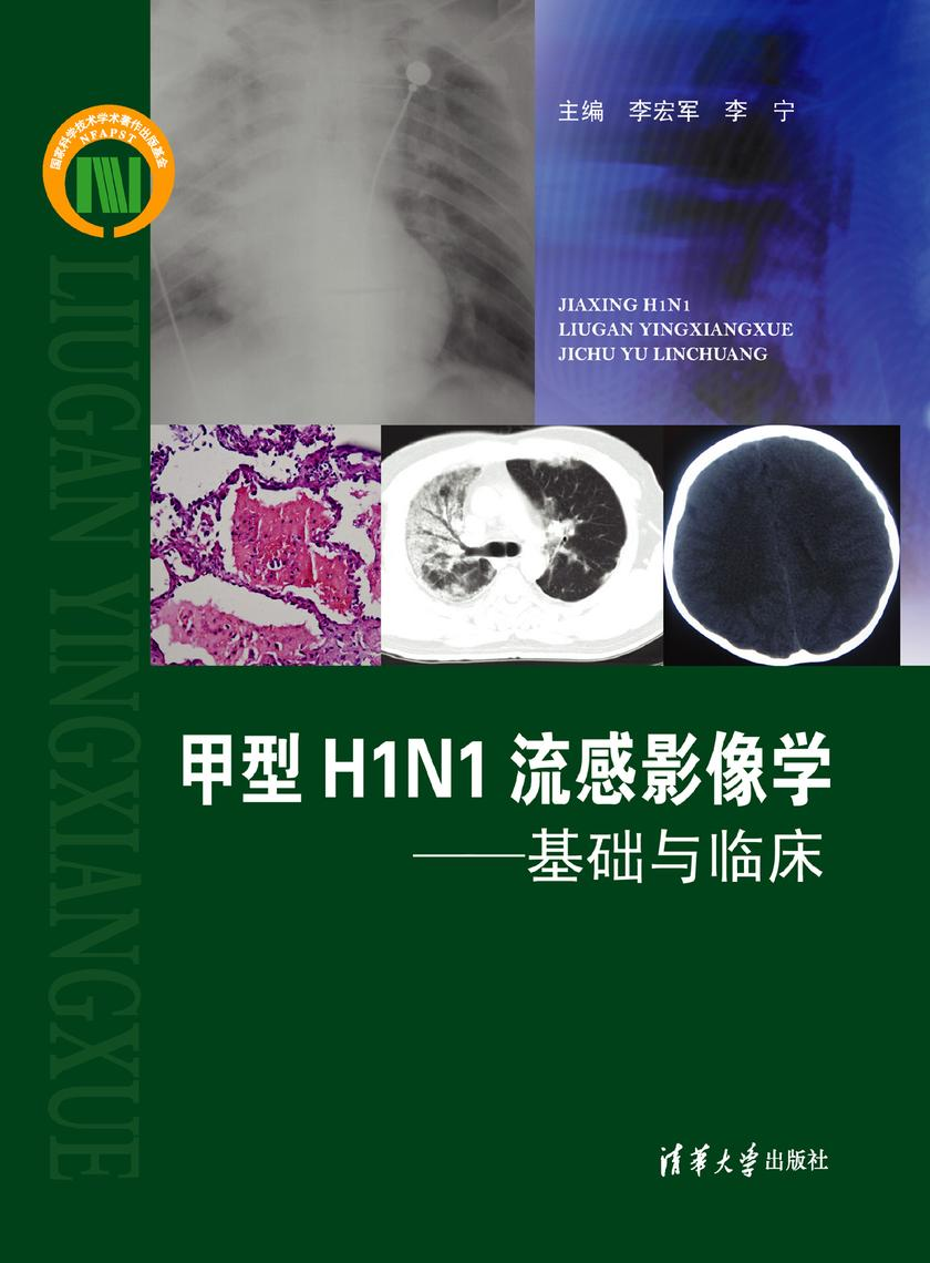 甲型H1N1流感影像学:基础与临床