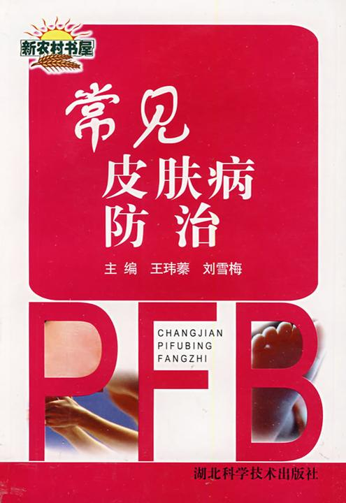 常见皮肤病防治
