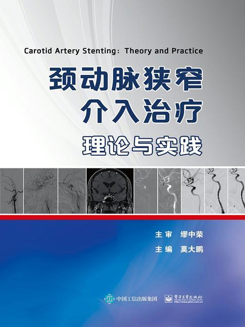 颈动脉狭窄介入治疗:理论与实践