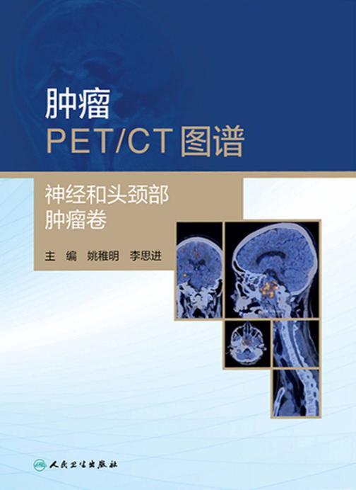肿瘤PET/CT图谱.神经和头颈部肿瘤卷