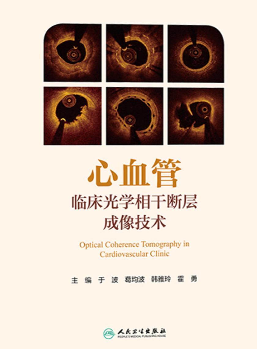 心血管临床光学相干断层成像技术