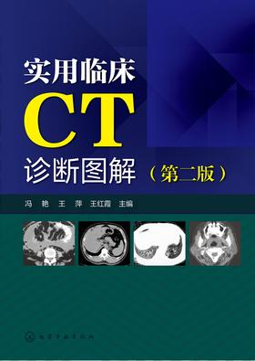 实用临床CT诊断图解(第二版)