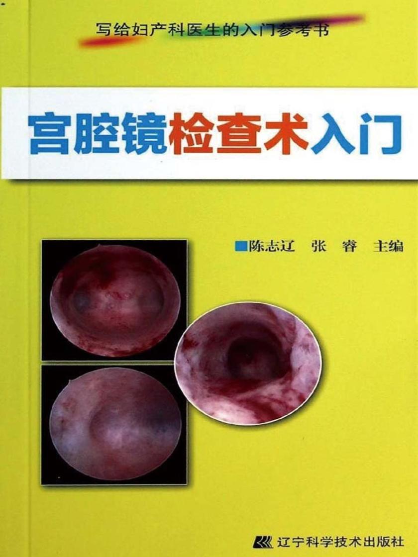 宫腔镜检查术入门