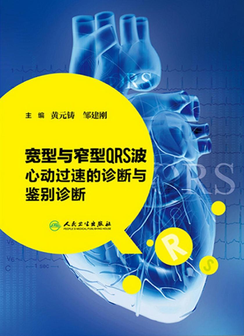 宽型与窄型QRS波心动过速的诊断与鉴别诊断