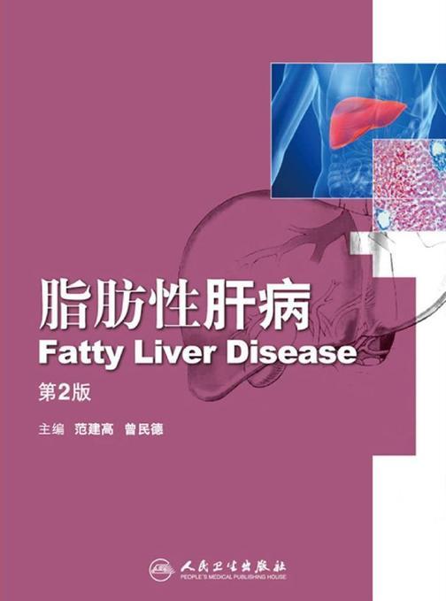 脂肪性肝病(第2版)