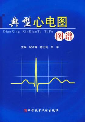 典型心电图图谱(仅适用PC阅读)